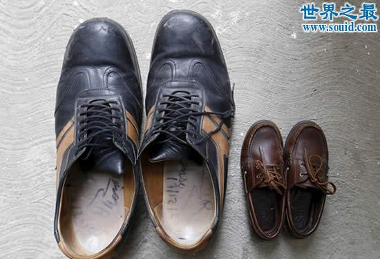 世界上最大的脚是正常人的两倍